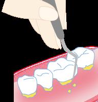 歯周病治療2