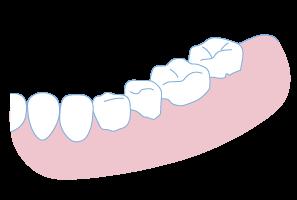 歯周病治療3