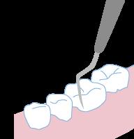 歯周病治療4