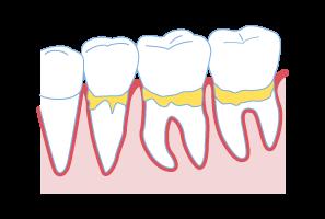 歯周病治療1