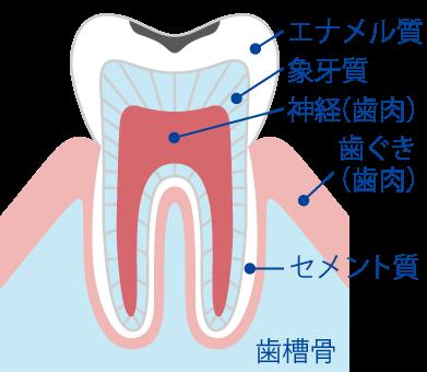 エナメル質のむし歯(C1)