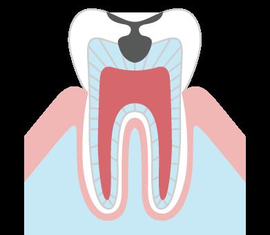 象牙質まで進んだむし歯(C2)