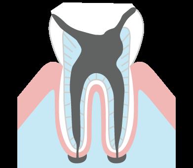 歯根だけ残ったむし歯(C4)